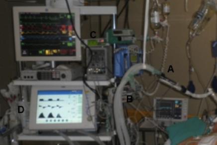 Sedación con sevoflurano en el postoperatorio de cirugía cardiaca: determinación de fluoruros en suero en el personal a cargo