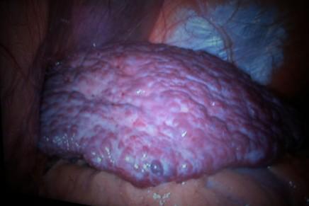 Alternativas de analgesia locorregional en el trasplante hepático