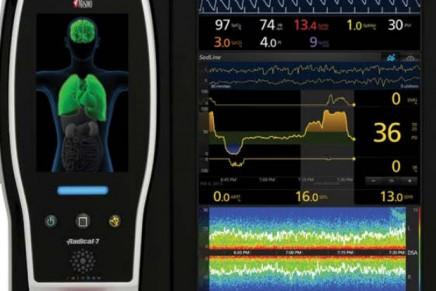 ¿Cómo trabaja nuestro cerebro durante la anestesia? Cursos online de EEG para Anestesiólogos.