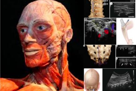 Curso Básico sobre Técnicas Ecoguíadas en Dolor Crónico sobre Cadáveres