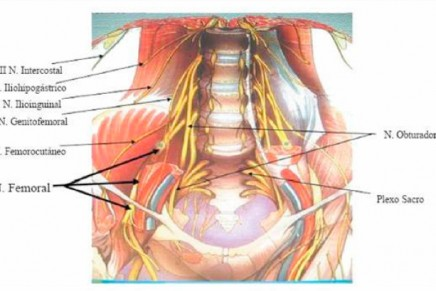 Anestesia Locorregional para Hernioplastia Inguinal Programada