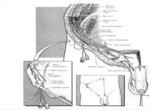 Anestesia Locorregional