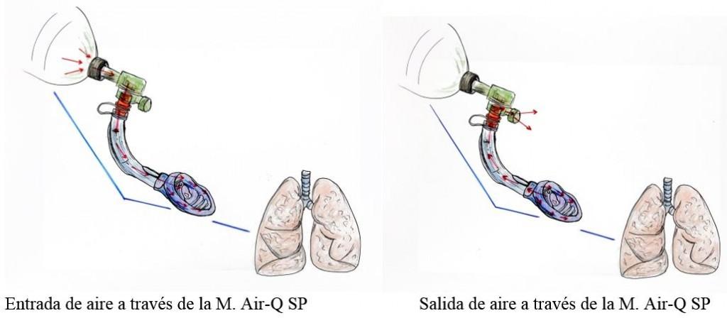 AIR-Q sp sistema