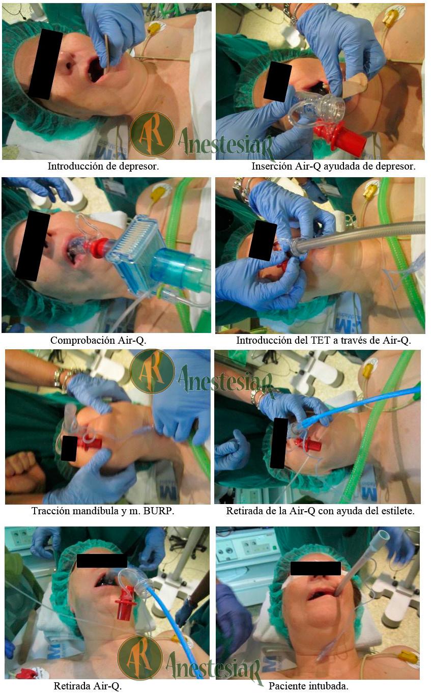 Intubacion con AirQ
