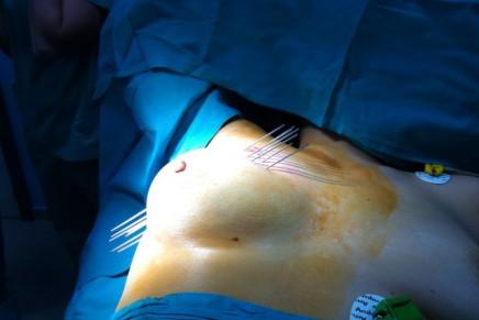 Braquiterapia para cáncer de mama bajo anestesia regional