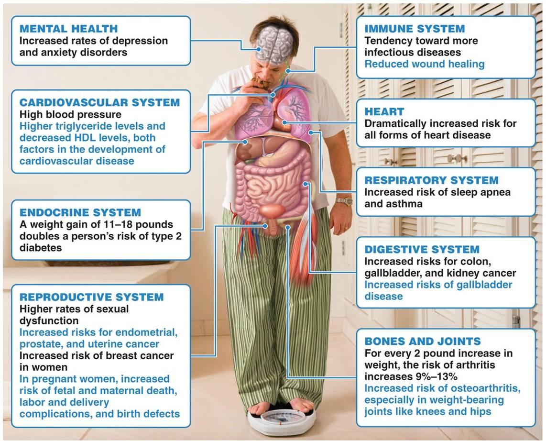 TIVA-TCI y Obesidad. 1ª parte : Generalidades
