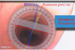 Traqueostomía percutánea guiada con ecografía frente a técnica clásica: ensayo clínico aleatorizado