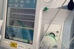 Ventilación Mecánica No Invasiva: tendencias y resultados