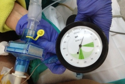 ¿Usamos el manómetro rutinariamente al utilizar una Mascarilla Laríngea?