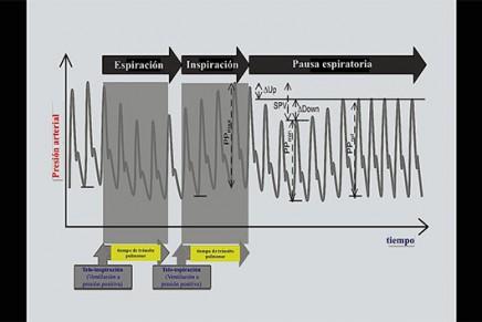¿La variación de la presión del pulso predice la respuesta a fluidos en pacientes críticos? Una revisión sistemática y metaanálisis