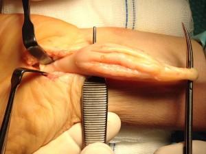 Imagen-intraoperatoria-Schwannoma