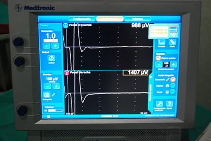 Ventajas del fibrobroncoscopio para la colocación del tubo endotraqueal electromiográfico en la monitorización del nervio laríngeo recurrente en cirugía de tiroides