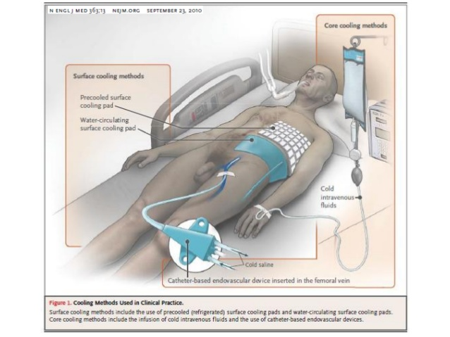 hipotermia-review-2-638