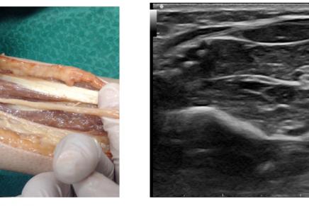Diagnóstico ecográfico de Schwannoma del nervio mediano al realizar bloqueo regional