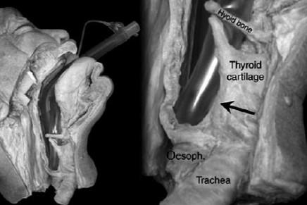 Lesión de nervios craneales tras el uso de Dispositivos Supraglóticos