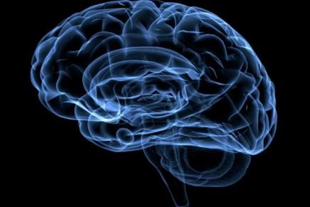Pronóstico neurológico en el síndrome postparada cardiorrespiratoria. Influencia de la presión arterial