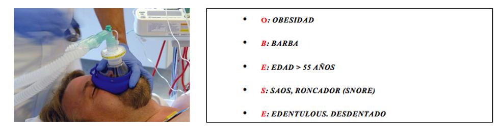 tabla3-ventilacion