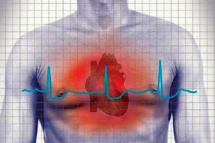 Función cardioprotectora del Remifentanilo