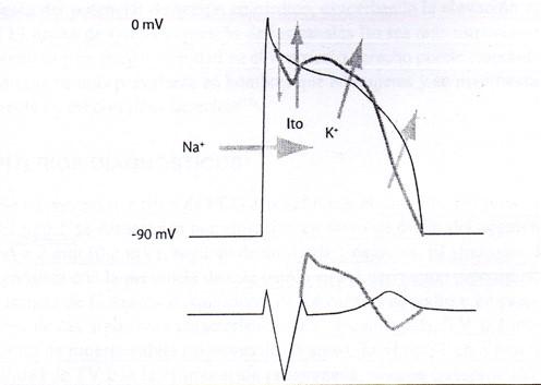 """Mecanismos celulares. La pérdida del lomo del potencial de acción ocurre debido al desequilibrio en fase I entre las corrientes Ito e Ica. Cualquier influencia que altere este equilibrio en uno u otro sentido resultará en cambios en el grado de elevación del segmento ST. Así, todas las intervenciones que aumenten las corrientes de potasio (como ocurre en la disfunción del canal de sodio producida por la mutación del mismo) aumetarán el grado de elevación del ST, mientras que intervenciones que aumenten la corriente de calcio disminuirán l grado de elevación del ST. (Extraído del libro"""" arritmias cardíacas"""" de Elizari, M. y Chiale, 2da. Edición. Editorial Panamericana, cap. 36, págs. 731-745)"""