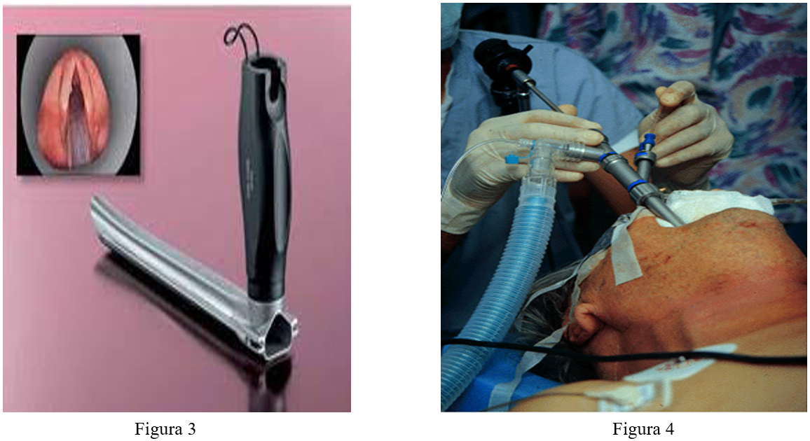 Figura 3: Laringoscopio de Hollinger. Figura 4: Broncoscopio rígido.