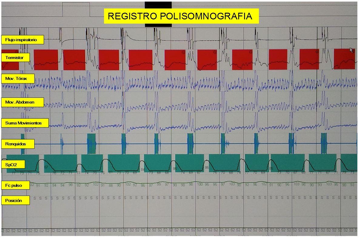 Registro polisomnografia