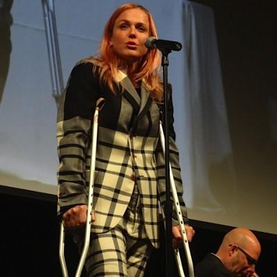 Figura 1.- La cantante Storm Large en una actuación 3 días después de haberse sometido a una cirugía en una pierna bajo Anestesia General.