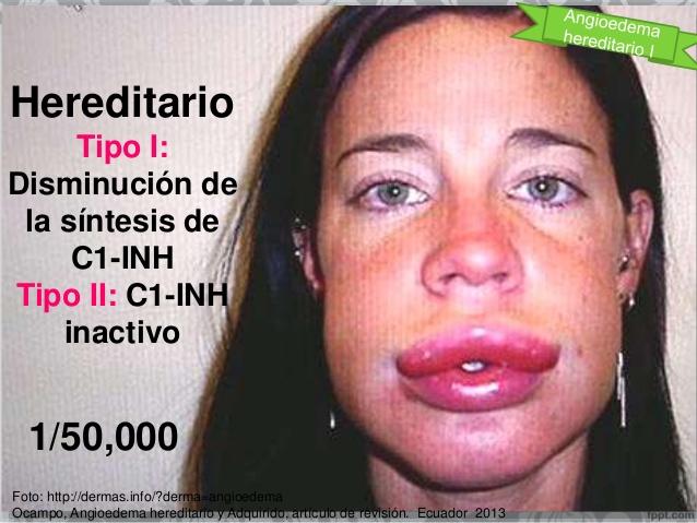 angioedema hereditario