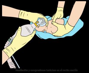 Ventilacion y Compresiones cardiacas en RN