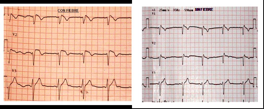 Figura 3: a la izquierda, ECG del paciente en el momento de ser admitido en quirófano, con registro febril de 38,8ºc, donde se observa un patrón de Brugada tipo I y a la izquierda, ECG del mismo paciente en el postoperatorio, en el que se evidencia un patrón de Brugada tipo III.