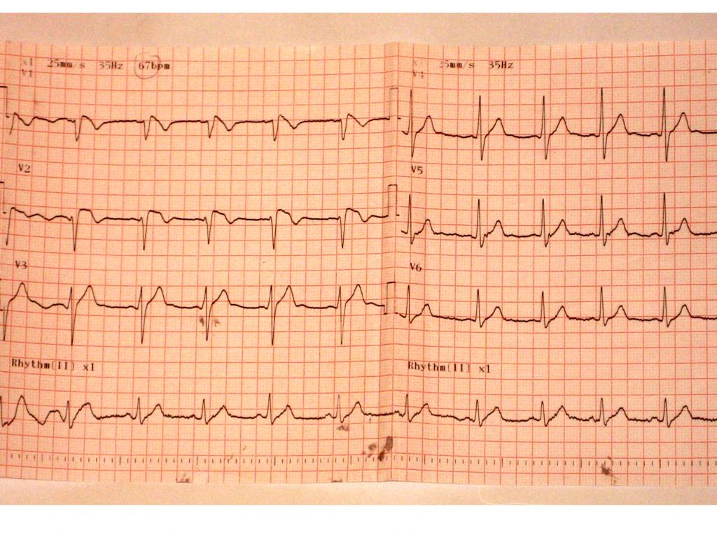 Figura 1: Electrocardiograma tomado en el momento del ingreso a urgencias, paciente con cuadro de fosa ilíaca derecha y registro térmico de 38,8 ºC.