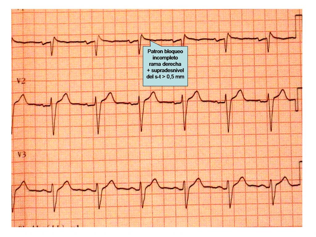 """Figura 2: Electrocardiograma del padre del paciente en las derivaciones precordiales derechas de V1 a V3, en el cual se puede apreciar un patrón de bloqueo incompleto de rama derecha con elevación del punto"""" j"""" > 0,5 mm."""