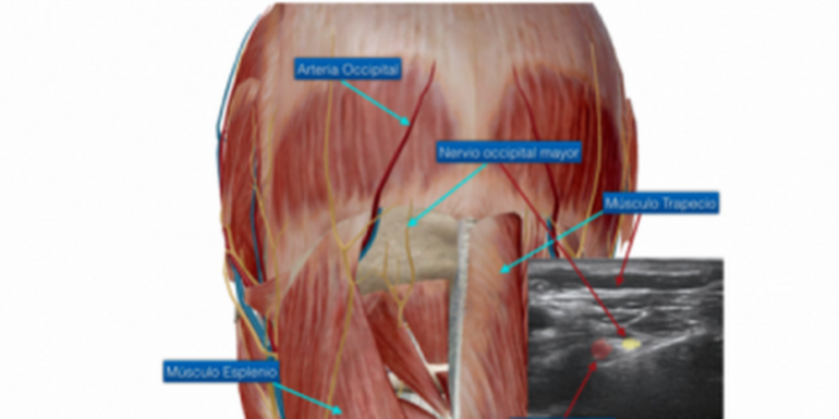 ¿Hay una arteria importante en la axila?