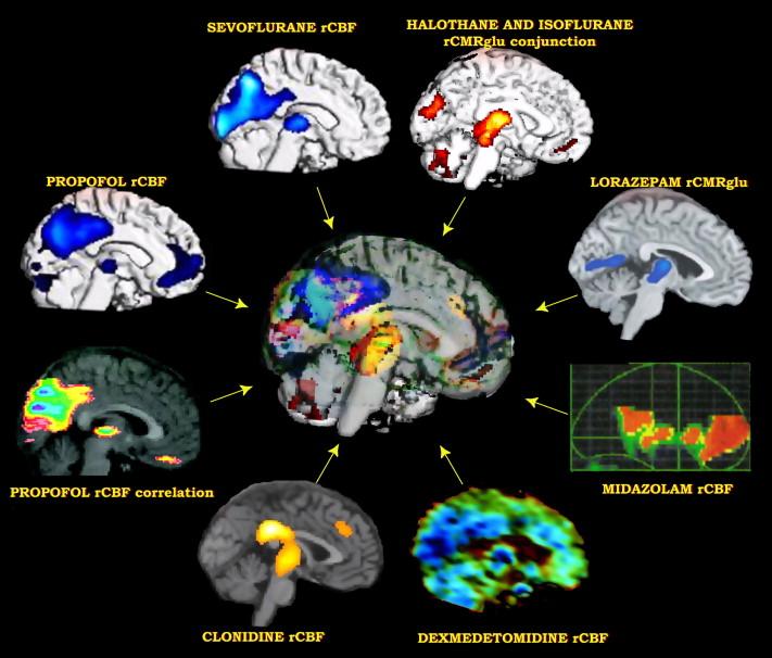 Deterioro cognitivo postoperatorio y nuestro papel en..
