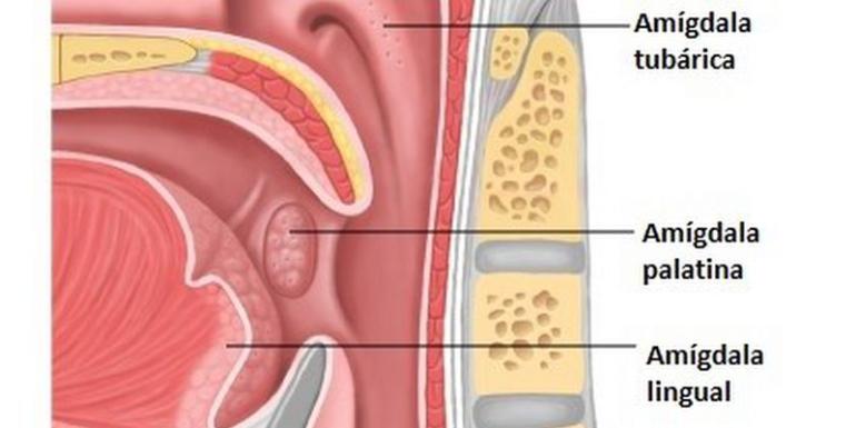amigdala inflamada sin dolor