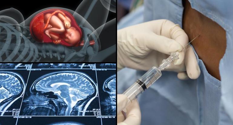 Revista de hipertensión intracraneal benigna